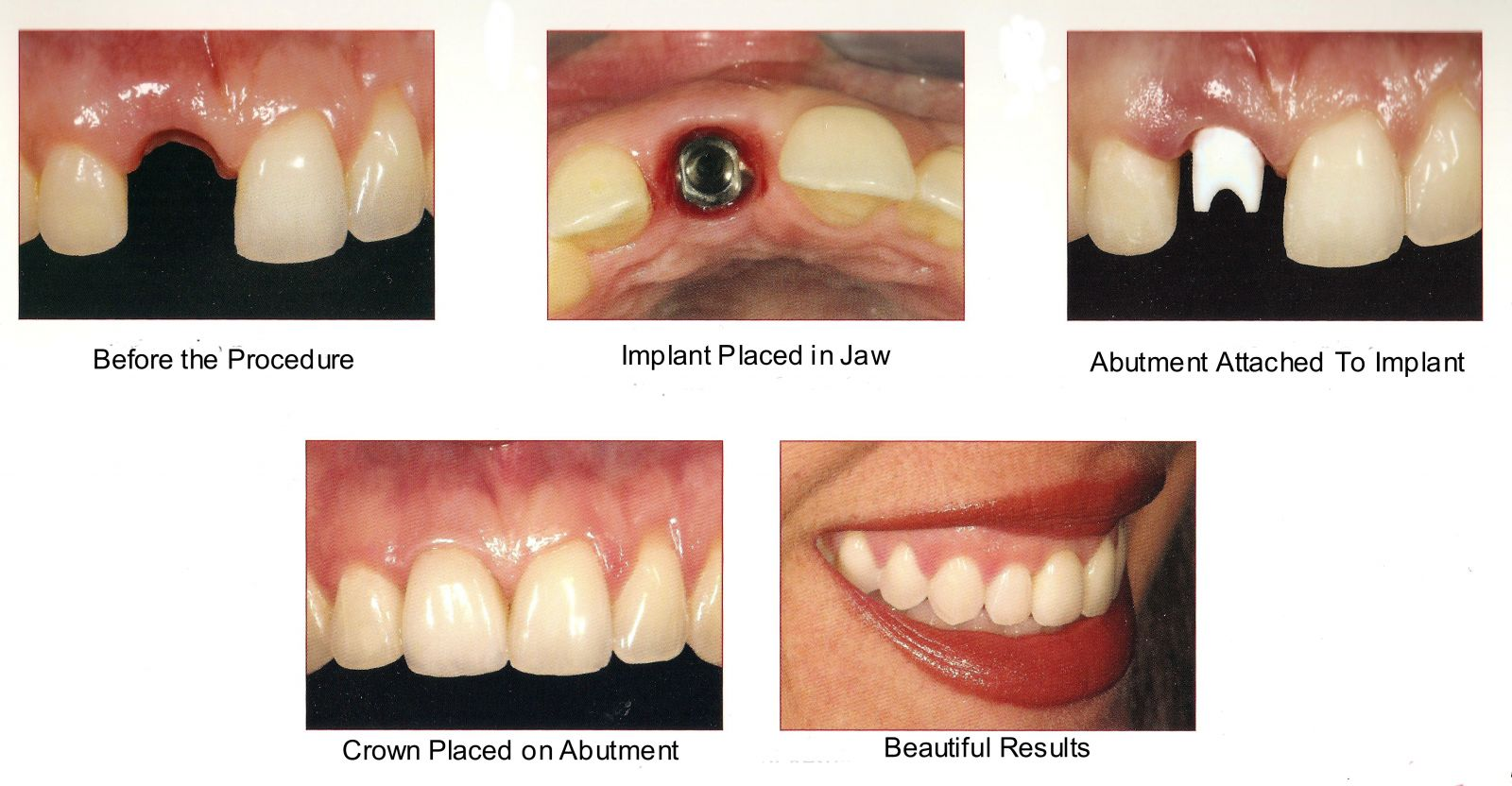 front teeth implant-2