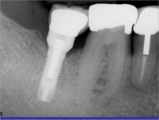 implant2a